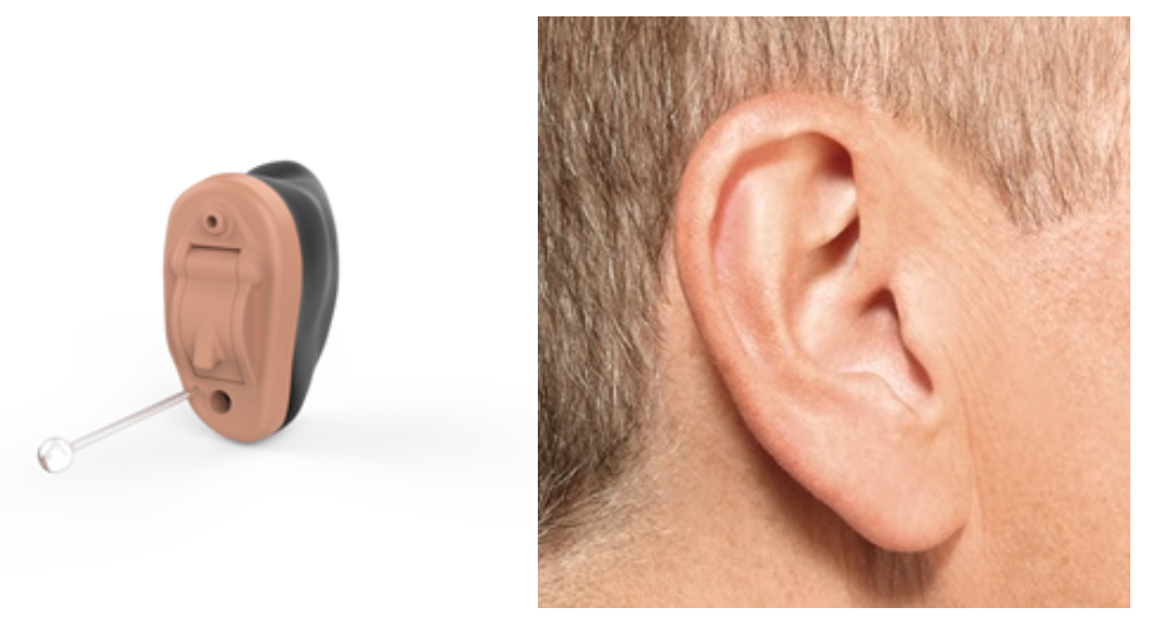 IIC – invisible in the canal hearing aid